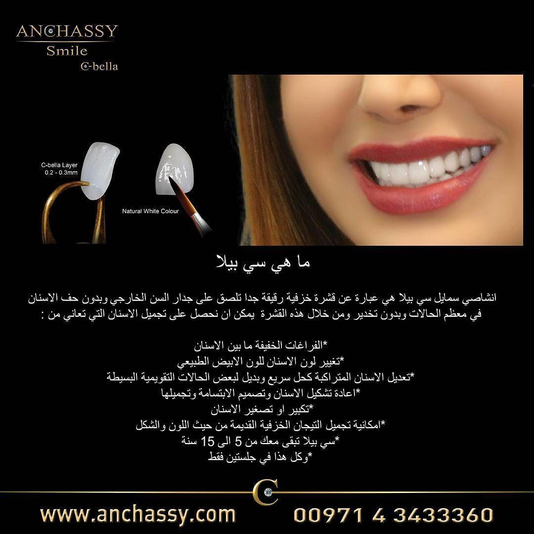 Dr Mohammad Anchassy On Instagram ما هي سي بيللا What Is C Bella Dubai C B Cosmetic Dentist Cosmetic Dentistry Cosmetic Dentistry Procedures