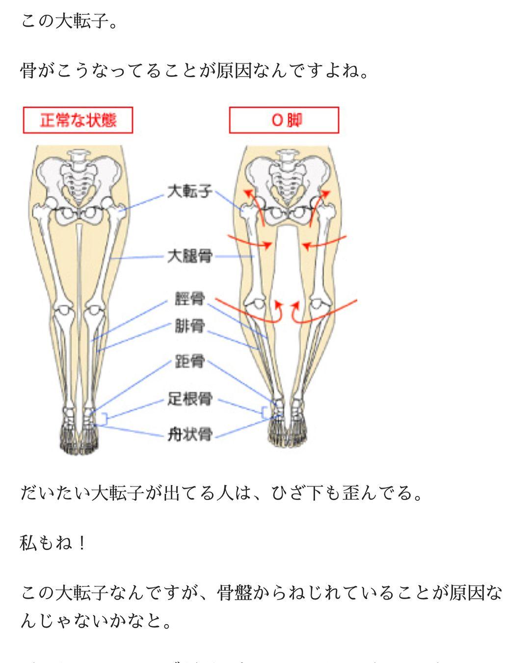 転 子 骨 大 大腿