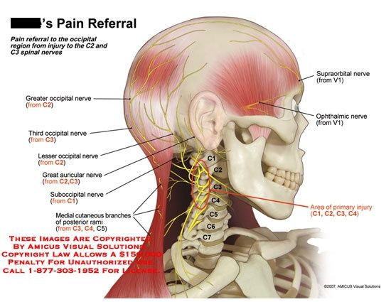 Pain Referral To Occipital Region From C2 And C3 Spinal Nerves