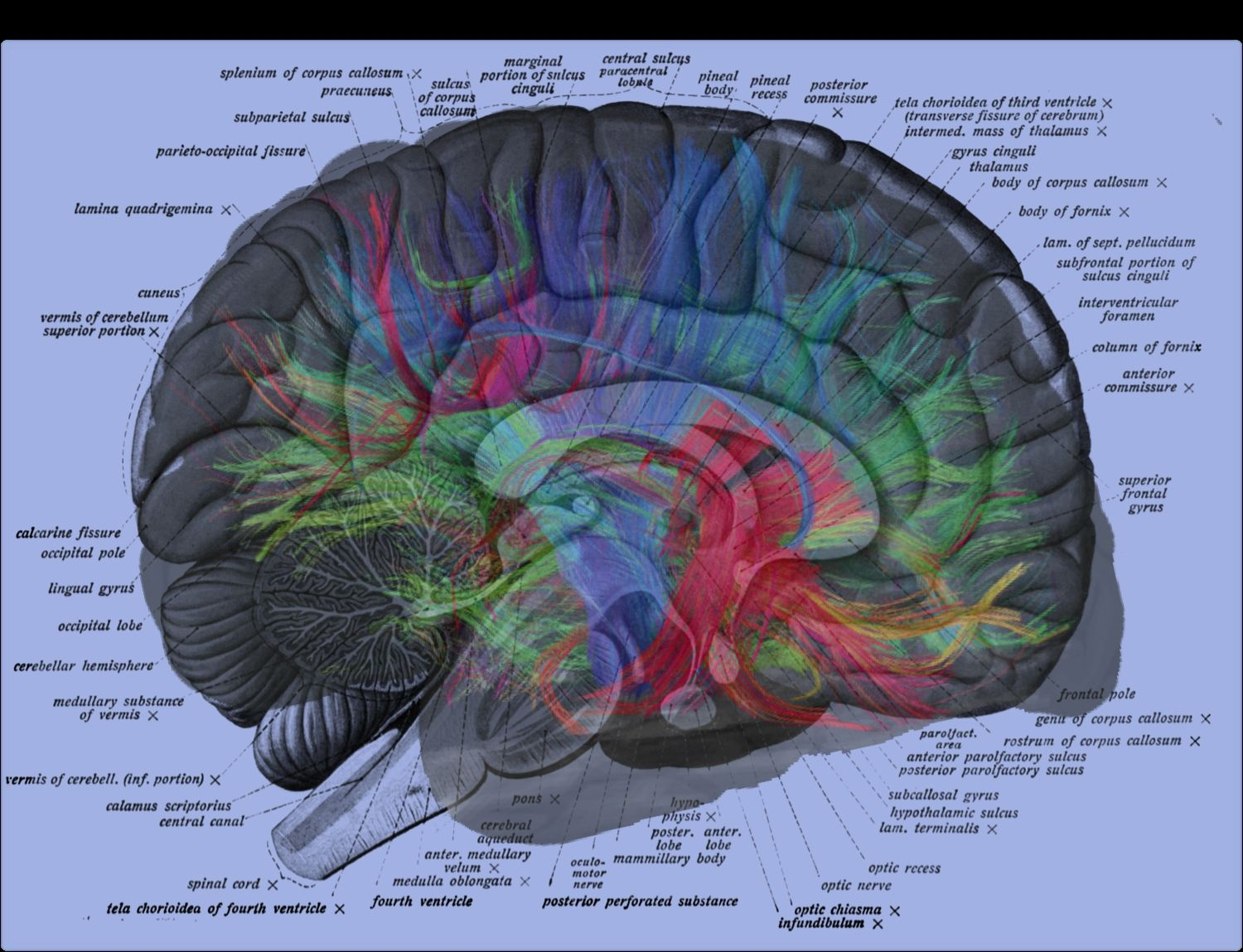 human brain labels overlay with weeden mri | Mri Scans | Pinterest