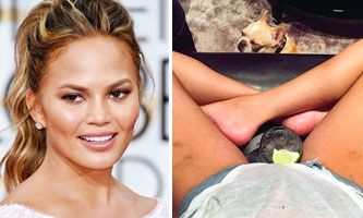 14 Hot Celebrities Who Have Stretch Marks Just Like You Do World Nº1 Viral Celebrity Stretch Marks Stretch Marks Bio Oil Stretch Marks