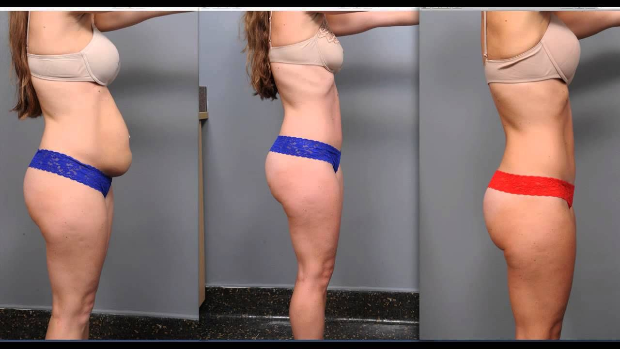 Tummy Tuck Recovery Dr Sterry Tummy Tucks Recovery Tummy Tuck Surgery Mini Tummy Tuck