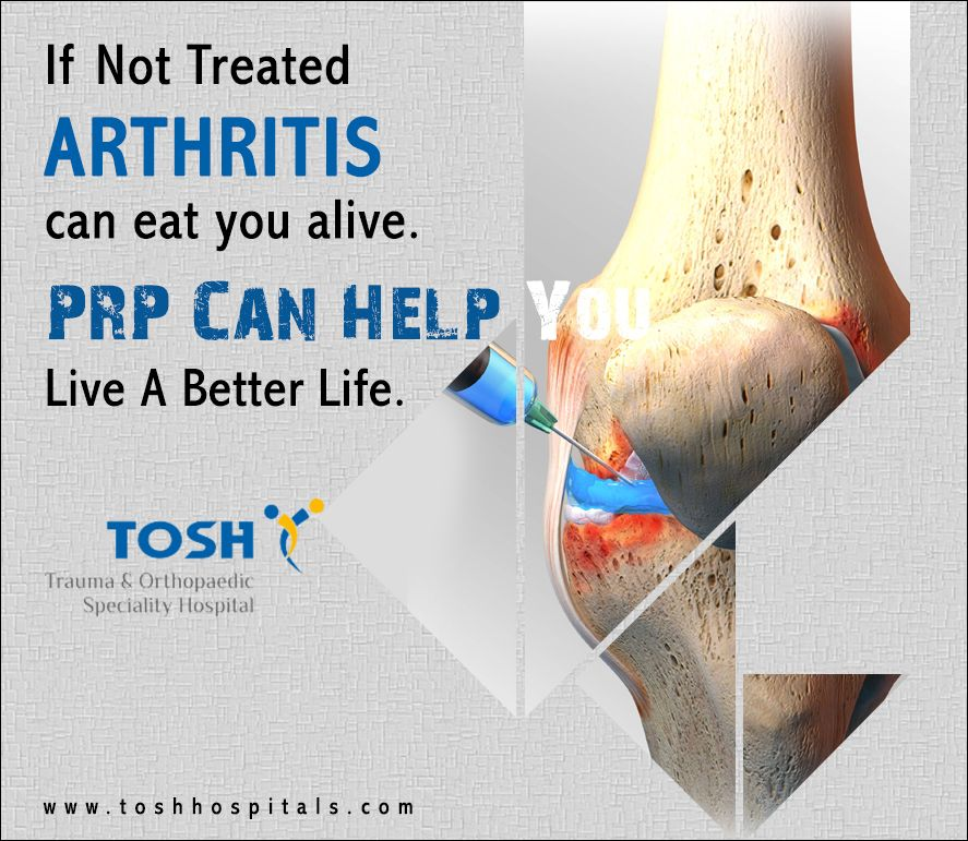 Plateletrich plasma therapy, sometimes called PRP therapy