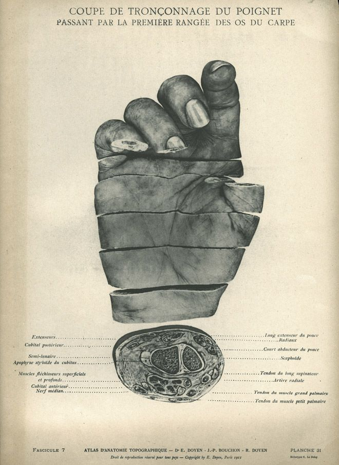 Rare, beautiful and disturbing objects from the National Library of Medicine.