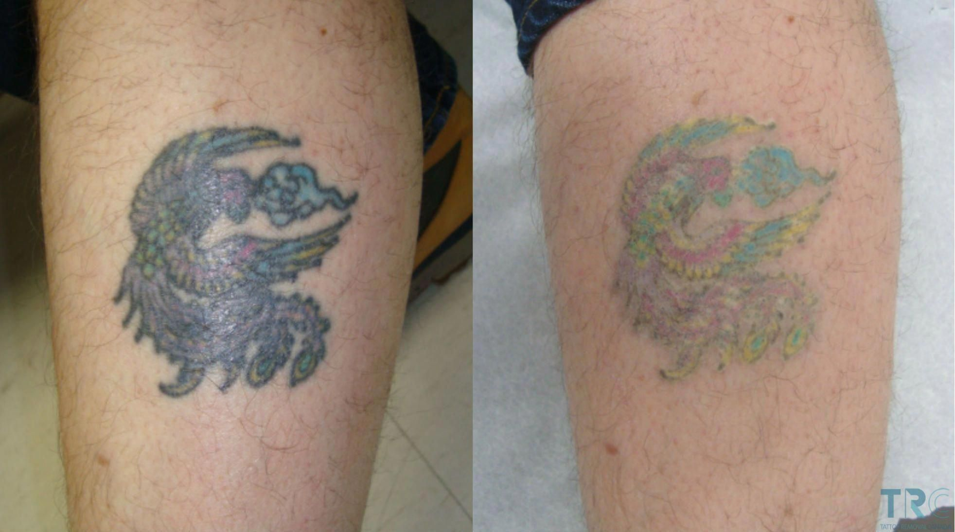Tattoo Removal Before And After Shot Red Tongue Picture