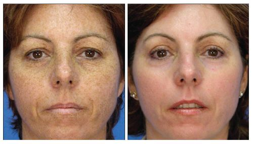 Forever Young Bbl Photofacial For Those Looking To