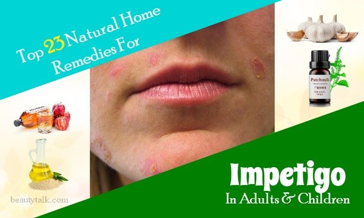 Do You Know How To Deal With Impetigo This Is What You Should Not