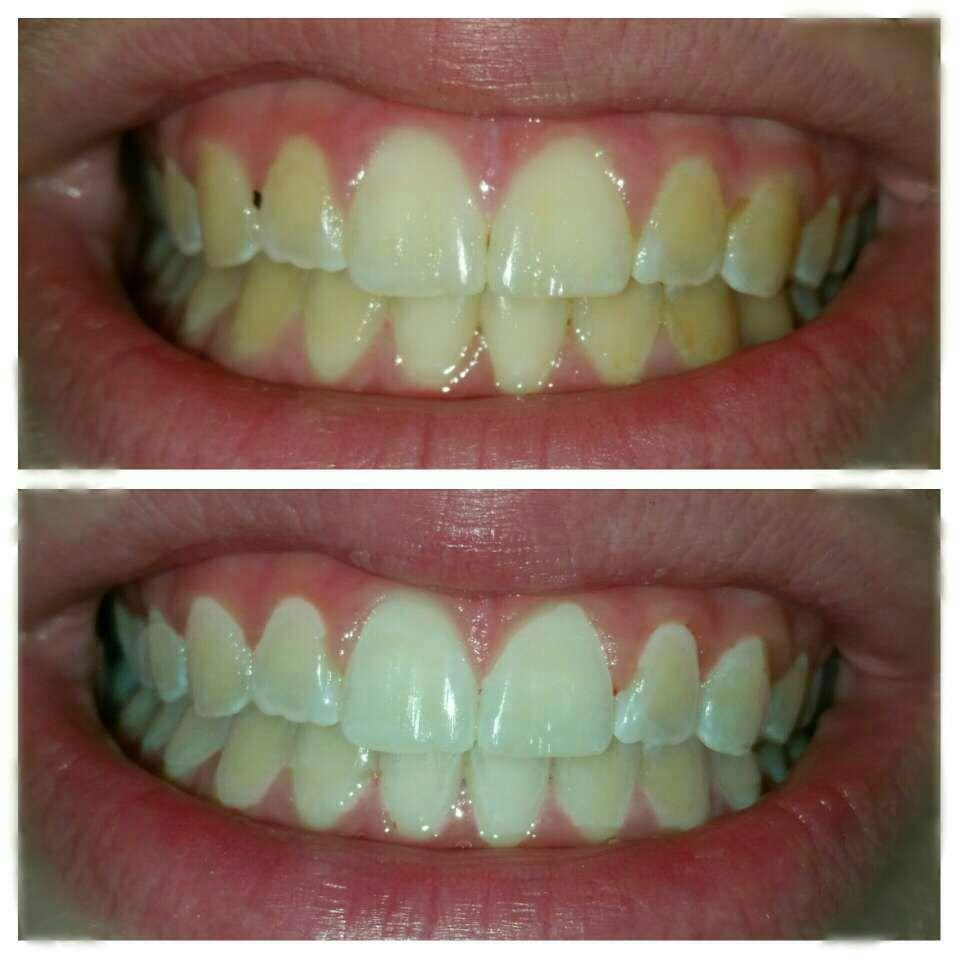 Pin on diy toothpaste mouthwash etc
