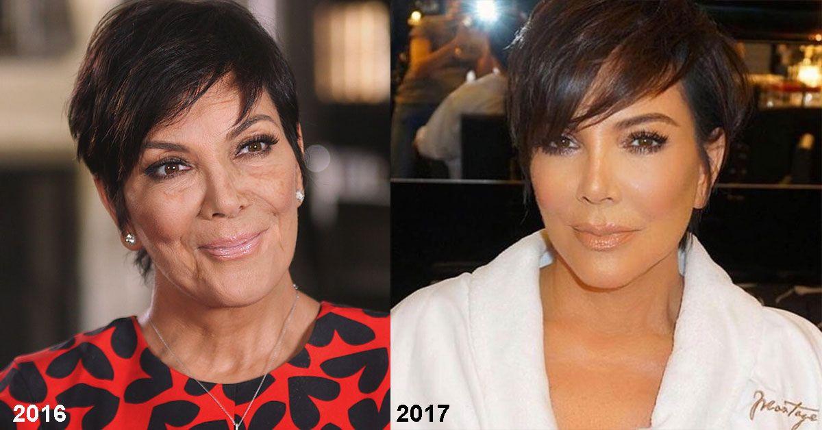 Kris Jenner Shocks With New Breakthrough Skincare Line Anti Aging Kris Jenner Aging