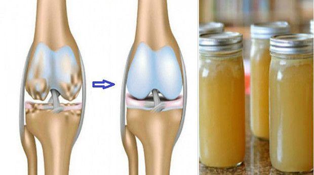 ami vállfájást jelent perifériás ízületek és gerinc osteoarthrosis, mint kezelni
