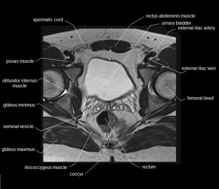 MRI pelvis anatomy | free male pelvis axial anatomy | MRI MALE ...