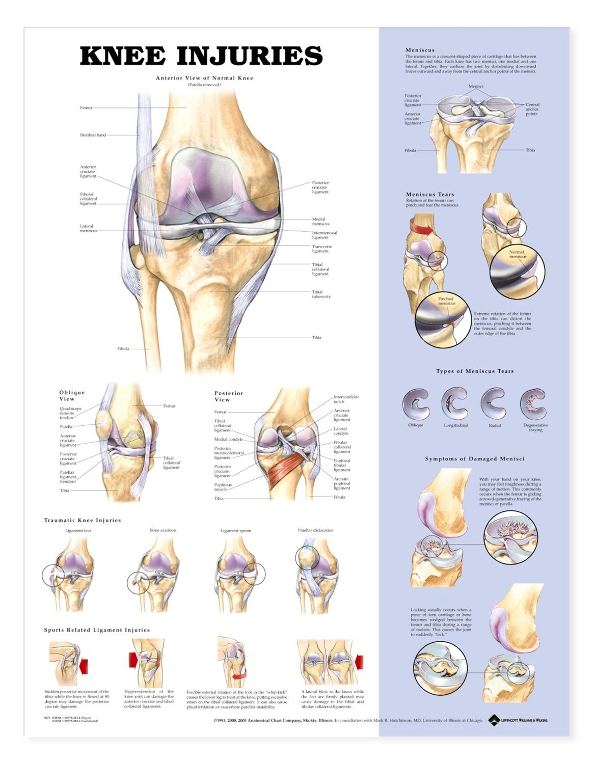 Resultado de imagem para sports injury posters mdico knee injuries anatomy poster shows anterior view of normal knee anatomy oblique and posterior views skeletal system chart for doctors and nurses pooptronica Image collections