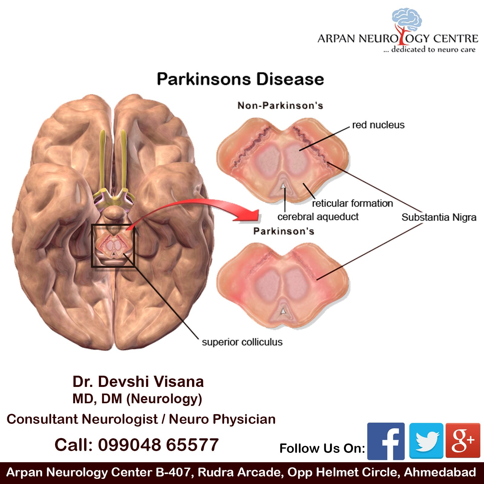 Parkinson\'s disease (PD) is a type of movement disorder. It happens ...