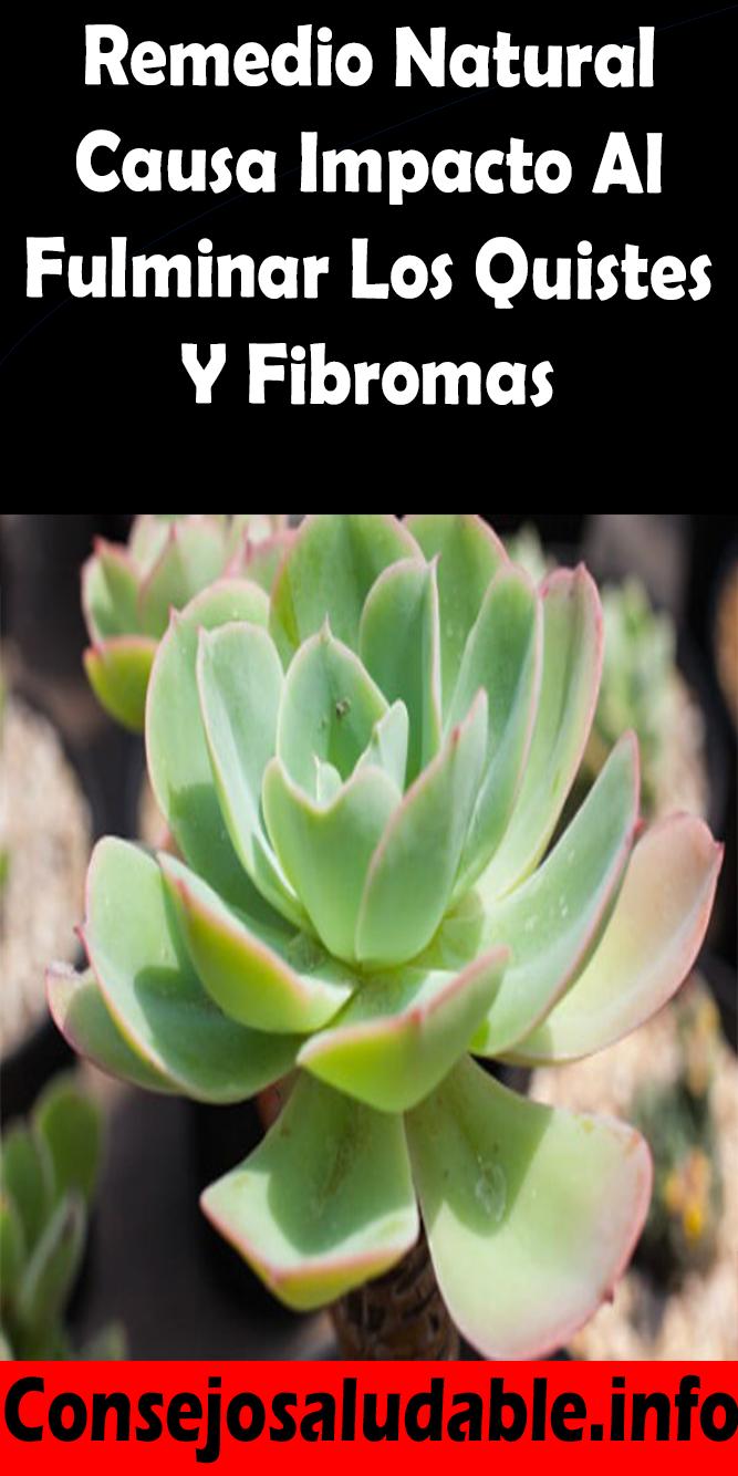 ¿los fibromas causan venas varicosas natural