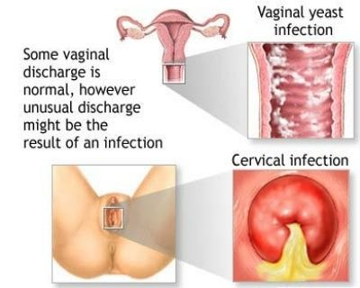 How long does a yeast infection last for