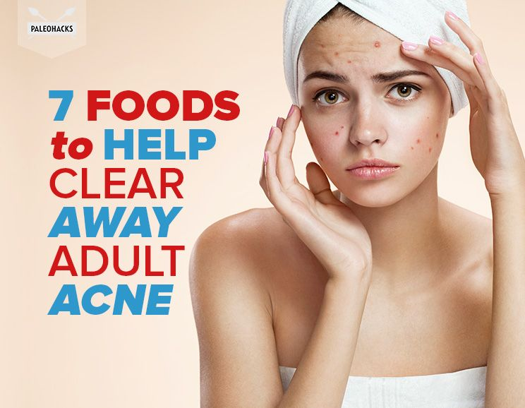 Clear Skin Diet Top  Foods To Eat To Prevent And Cure Adult Acne