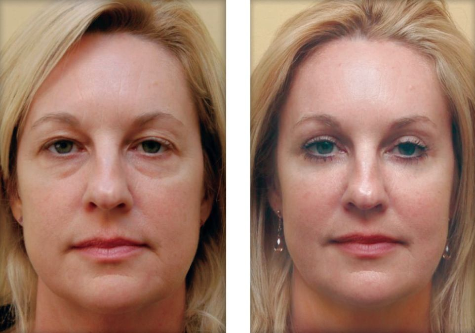 effects on plastic surgery Plastic surgery, the good and the bad home health natural remedies (photo bellow shows cindy's before and after plastic surgery results) side effects of.
