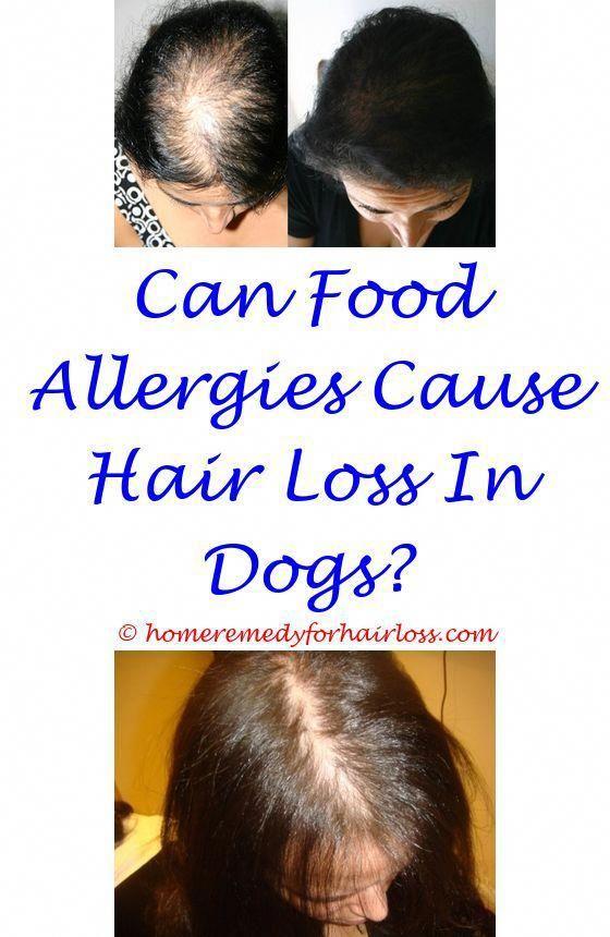 tight sore scalp hair loss - sore itchy scalp hair loss hair loss at