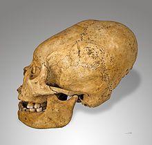 Artificial cranial deformation- Potro Nazca deformed skull, c 200-100 BC