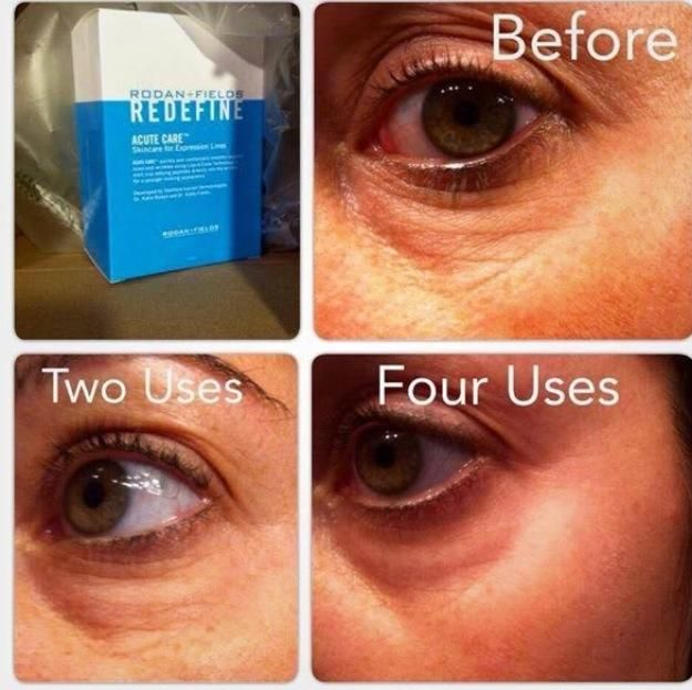 Fill a Wrinkle while you sleep.   Rodan+Fields' ACUTE Care after two and four uses.  The box has a one month supply (10 applications).  Imagine the results after you complete the regimen!
