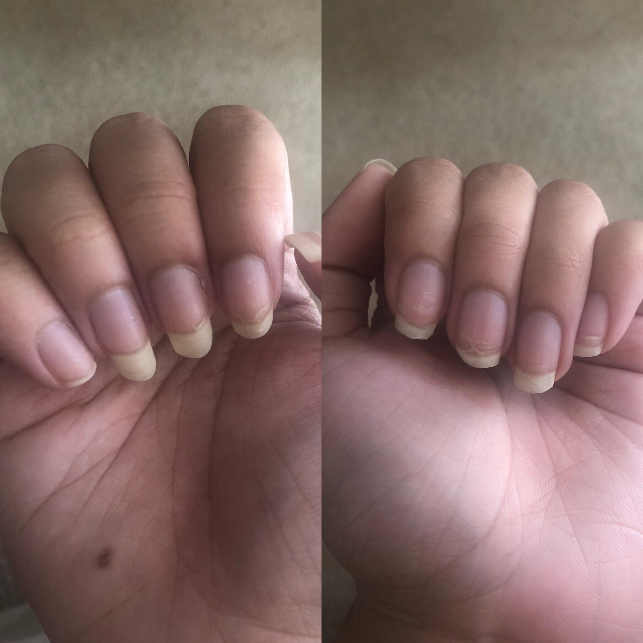 Got my nails done where gel was used for the glue and fake