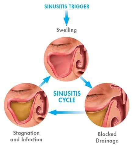 Salty sinus drainage