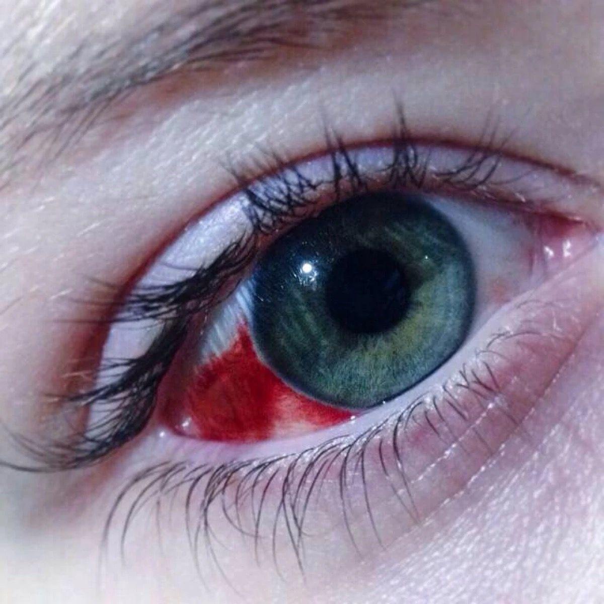 Картинки про красные глаза