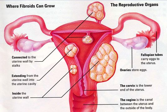 1000  images about Fibroid & Ovarian Cyst Prevention and Treatment ...