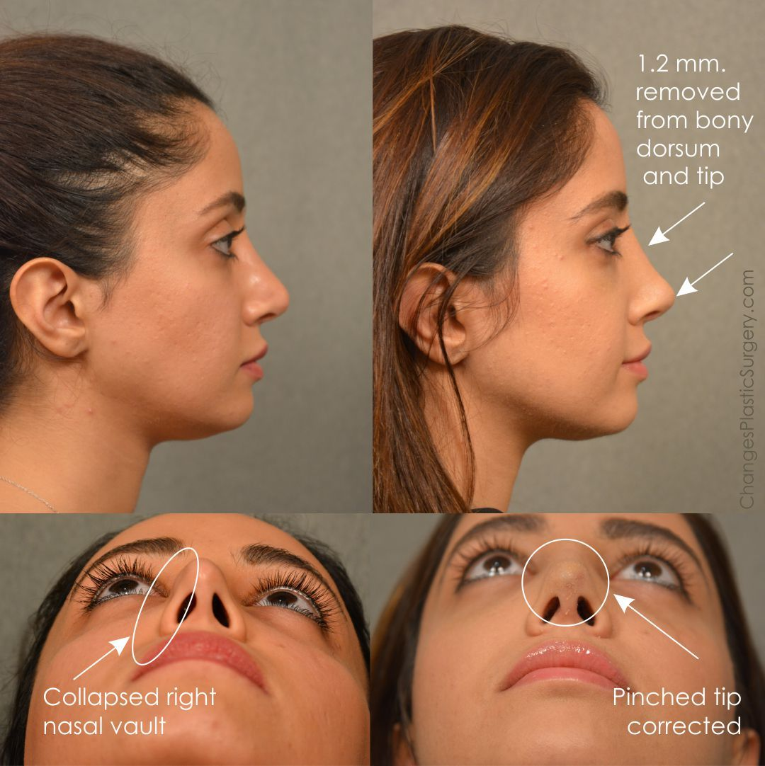 Revision rhinoplasty corrections to dorsum and collapsed