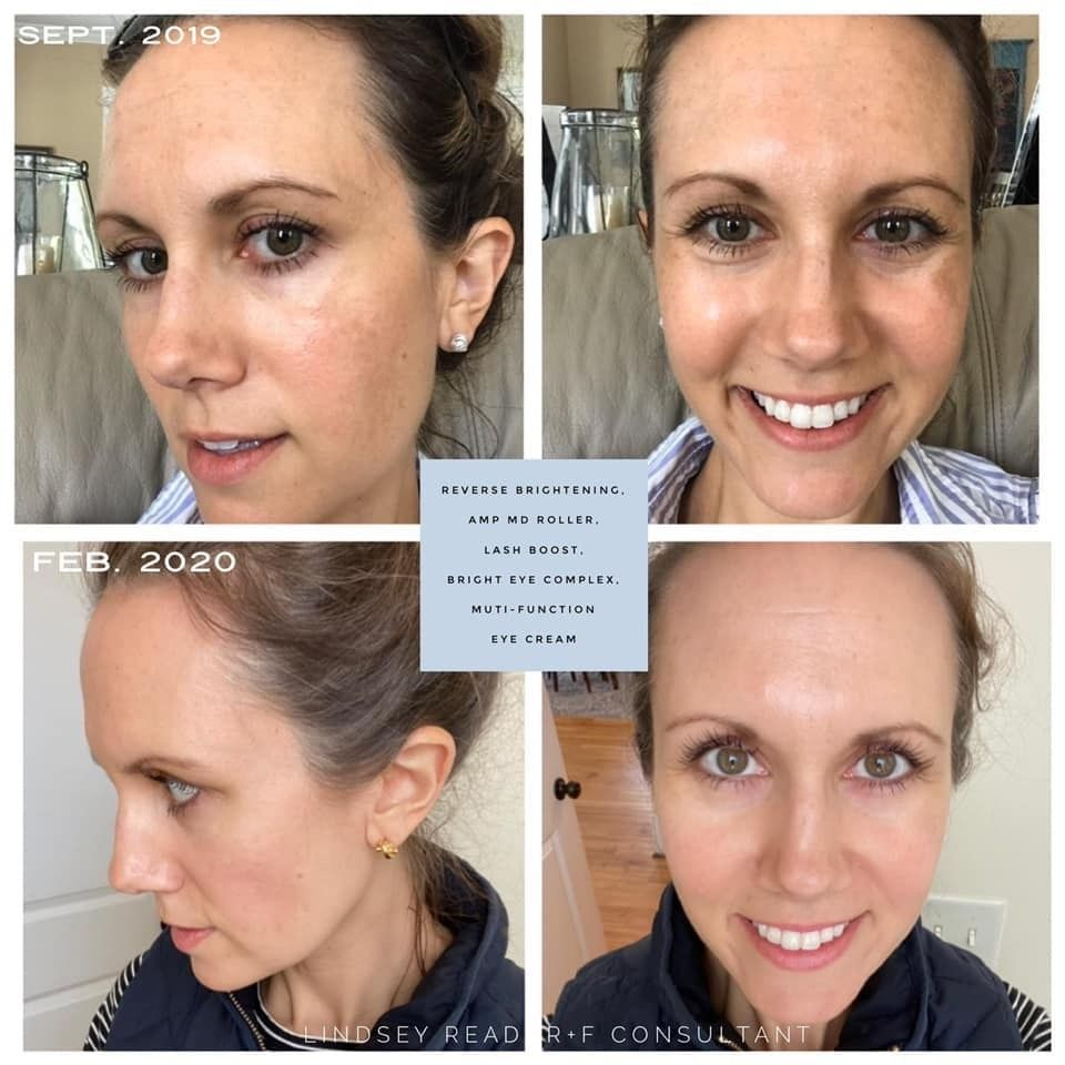 Reverse Rodan And Fields Rodan And Fields Consultant Skin Discoloration Face