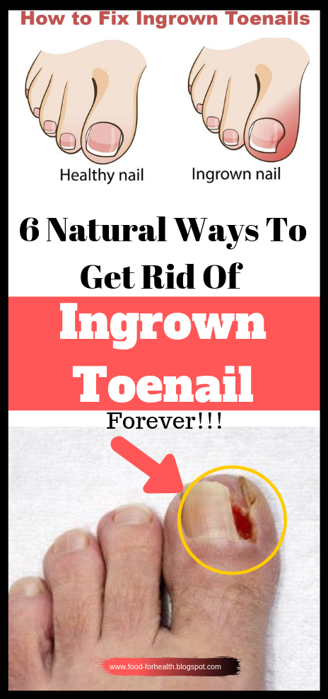 f88d8e97d0630d4e15274bebdf0b5455 - How To Get Rid Of Ingrown Toenails On The Side