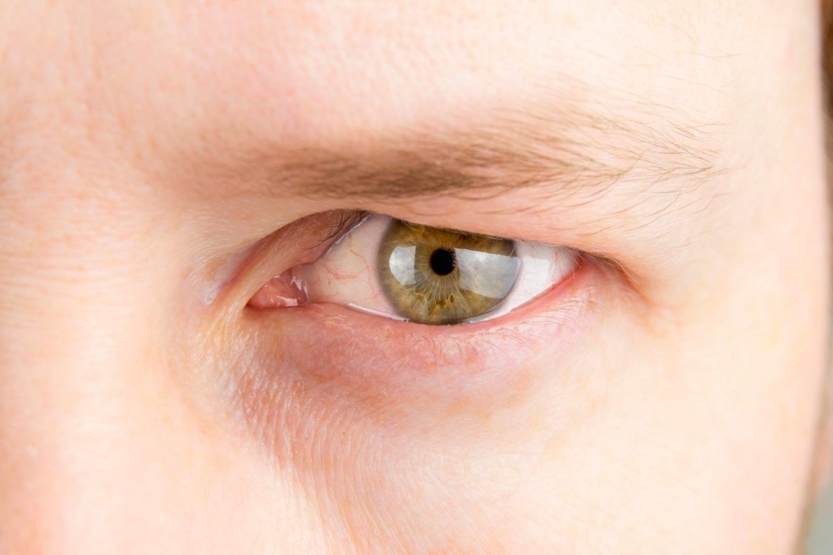 how to get rid of hooded eyes exercises