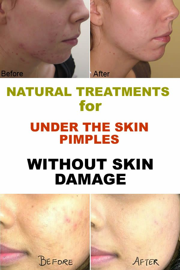 Under The Skin Pimples Remedies Without Skin Damage Girls Beauty Exposed Pimples Remedies Pimples Under The Skin Pimples