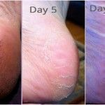 Never Suffer From Cracked Heels Corns and Calluses Again with This Home Remedy #CrackedSkinOnHeels #crackedskinonheels