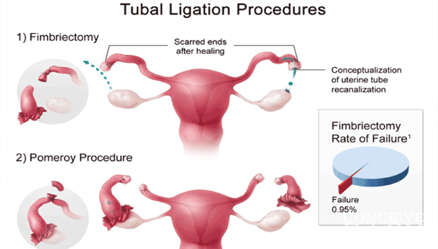 How Is It Possible To Get Pregnant After Tubal Ligation