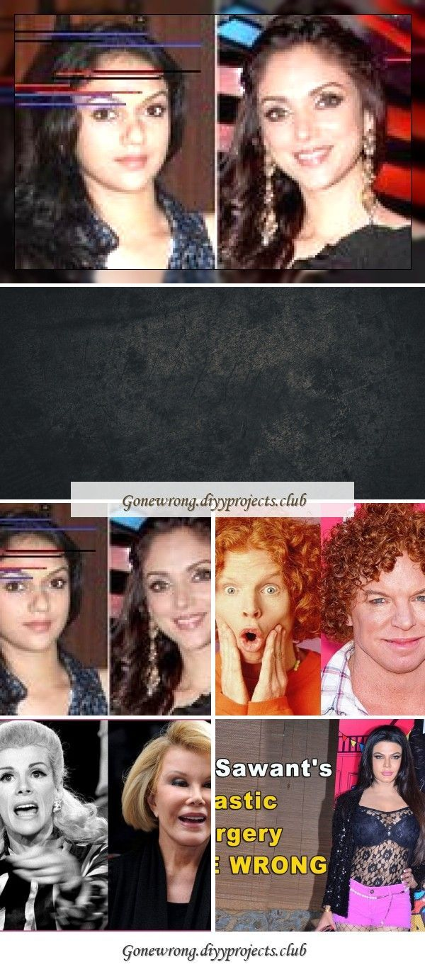 Photo of Carrot top before and after plastic surgery. Wrong photoCarrot top before and after …..