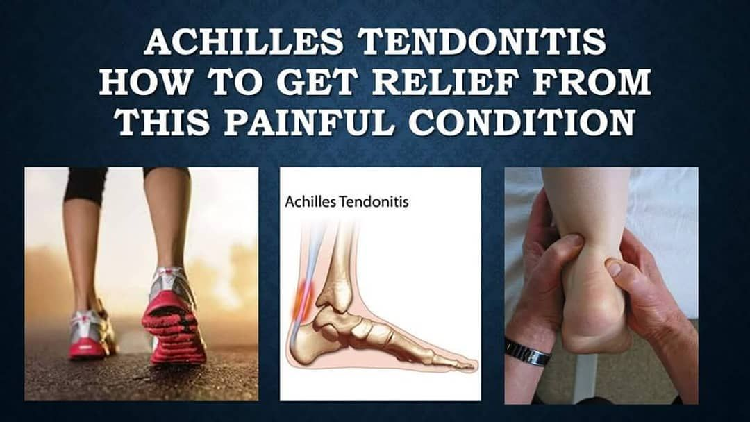 How To Treat Achilles Tendonitis Using The Rice Method Many
