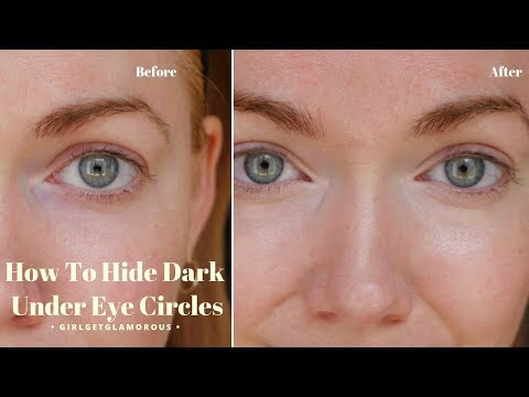 how to get rid of hide dark circles under eye without ...