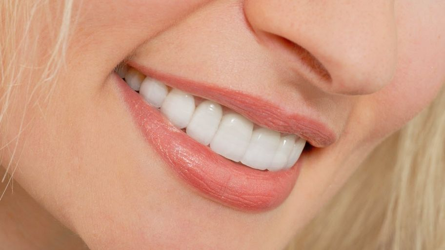 How much do lumineers vs veneers cost veneers teeth