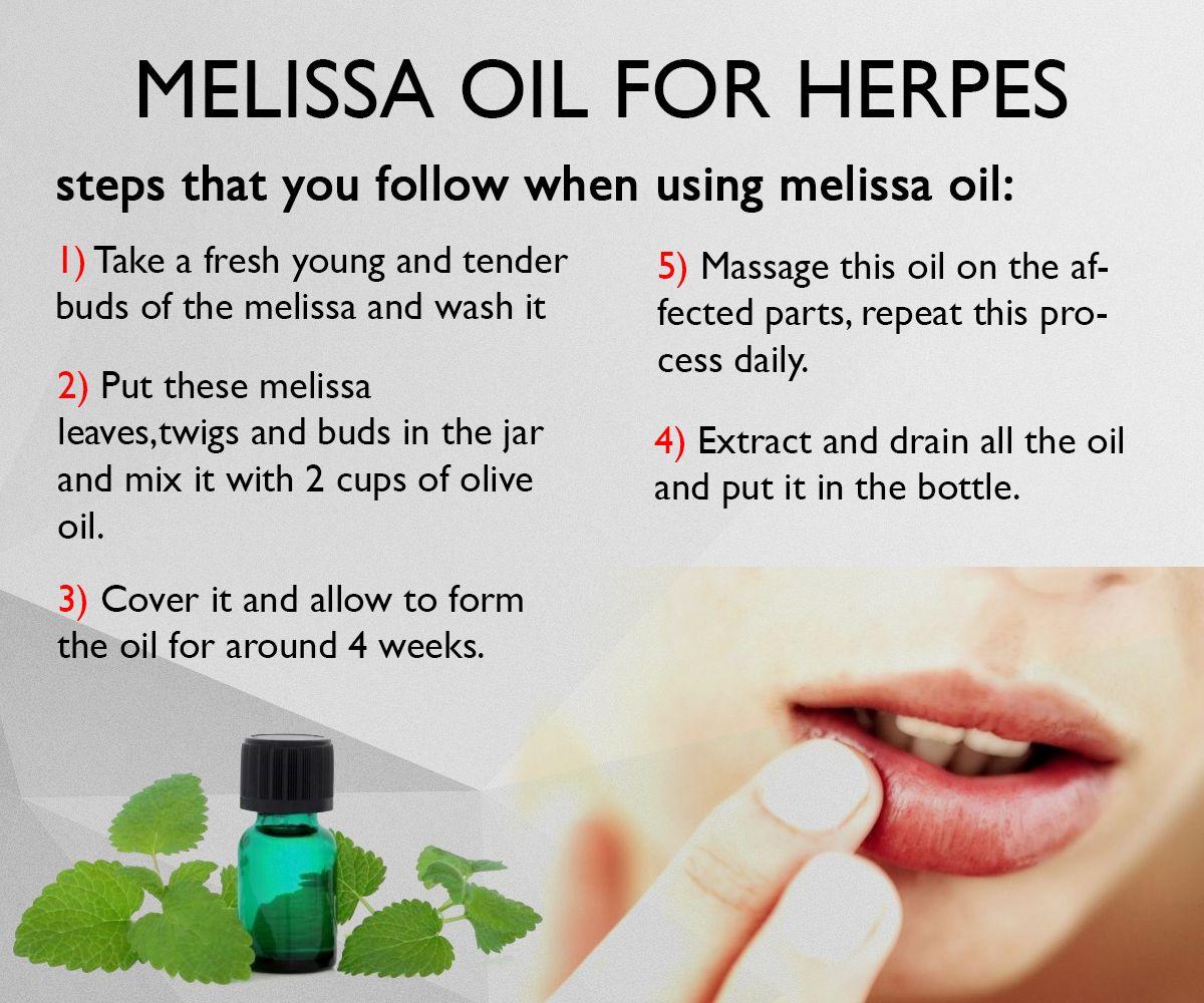 essential oil for genital herpes
