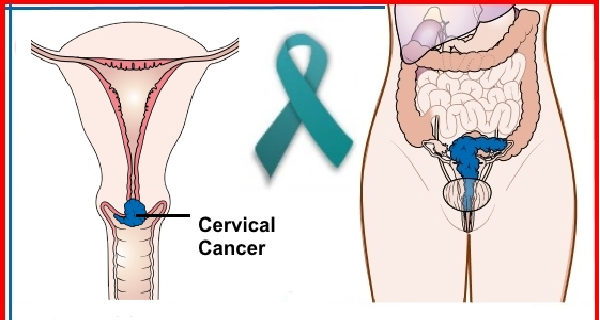 10 Warning Signs of Cervical Cancer You Shouldnt Ignore - The cervical  cancer was a major cancer death risk for women over than 40 years ago.