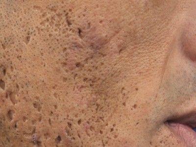 Totul despre acnee: cauze, simptome, tratament