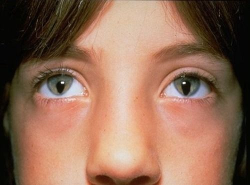 Congenital iris coloboma is a hole or defect of the iris. It can affect one or both eyes and causes varying levels of blindness.