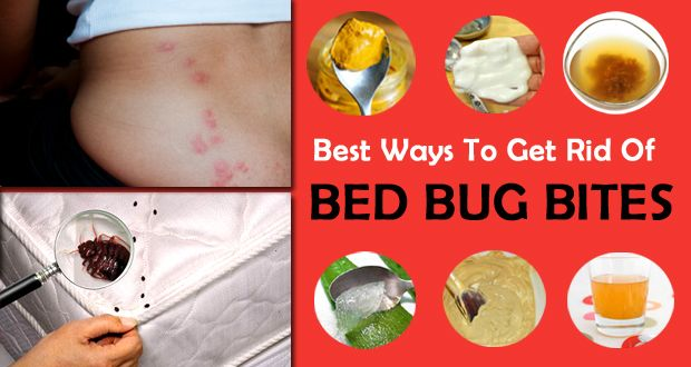 how to get rid of bed bug bites | recipes | pinterest | bed bugs