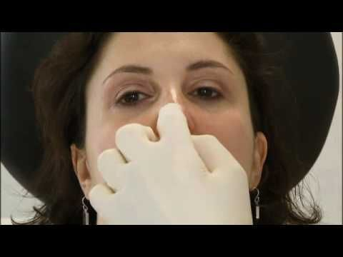 NYC dermatologist, Dr. Schweiger, appears on FOX News to demonstrate a non-surgical nose job procedure.