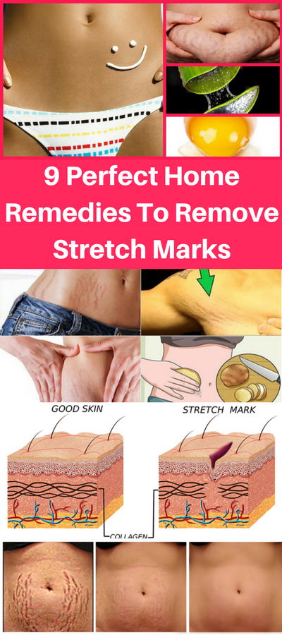 Here Are 9 Perfect Home Remedies To Remove Stretch Marks!!!  #lifehacks  #fitness