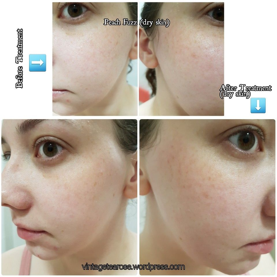 My Experience Dermaplaning (With images) Dermaplaning