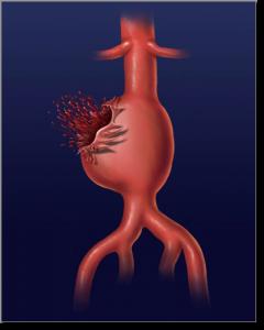 ruptured abdominal aortic aneurysm   VascularTyler   Pinterest ...