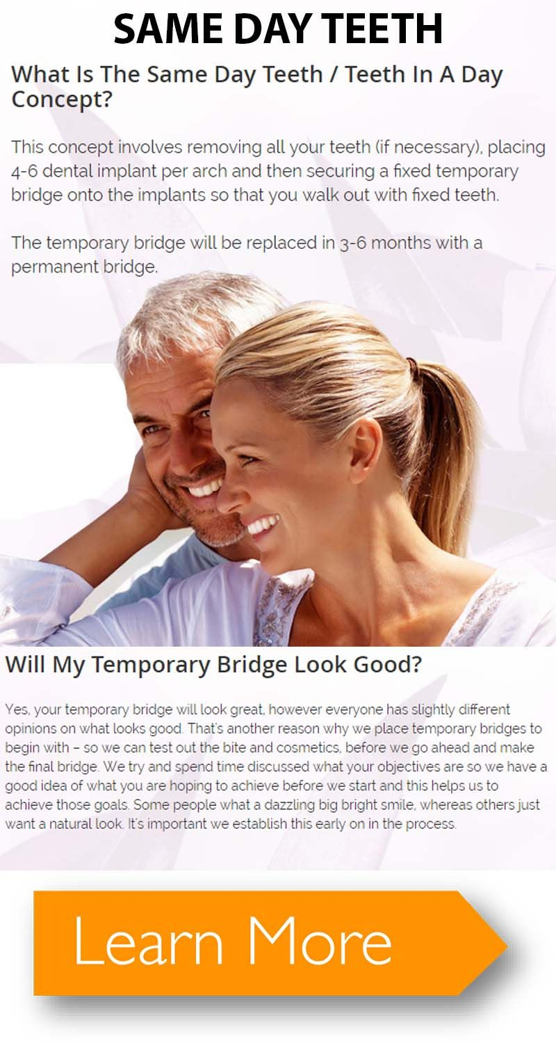 Get the picture perfect smile with the same day teeth in