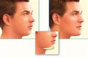 I do a Chin implant